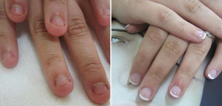 antes y despues de uñas